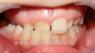 ocluzia încrucişată ortodont cluj