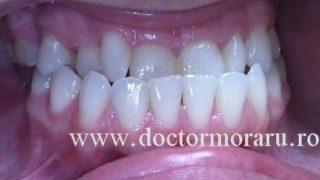 ocluzia inversă ortodonție cluj