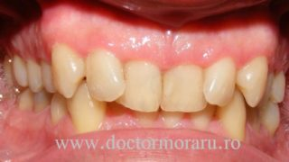 ocluzie adanca ortodontie cluj