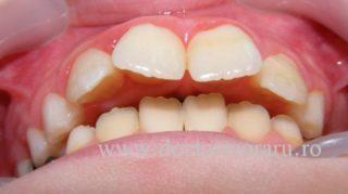 protruzie ortodontie cluj