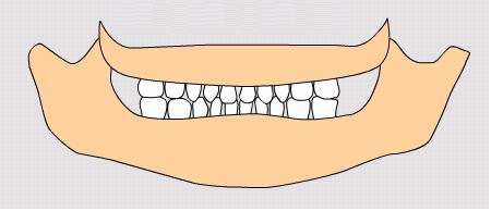 dentiţia temporară