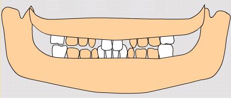 dentiţia permanentă