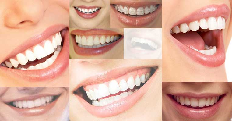aparate dentare, ortodont cluj-napoca