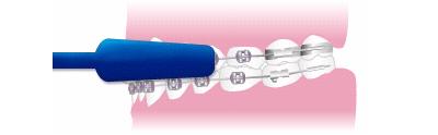 periajul dinţilor cu aparat dentar
